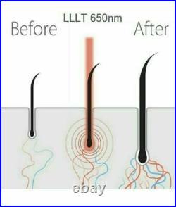 Best Laser Cap LLLT Helmet For Hair Regrowth / Hair Loss Treatment Lazer Therapy