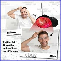 Refurbished 272 Diode Hair Low Light Laser Treatment Hair Growth/Loss Cap/Helmet